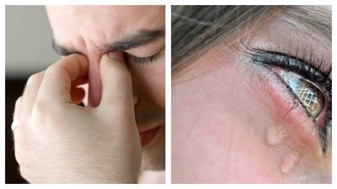 Инородное тело в глазу - ощущение, попадание, удаление