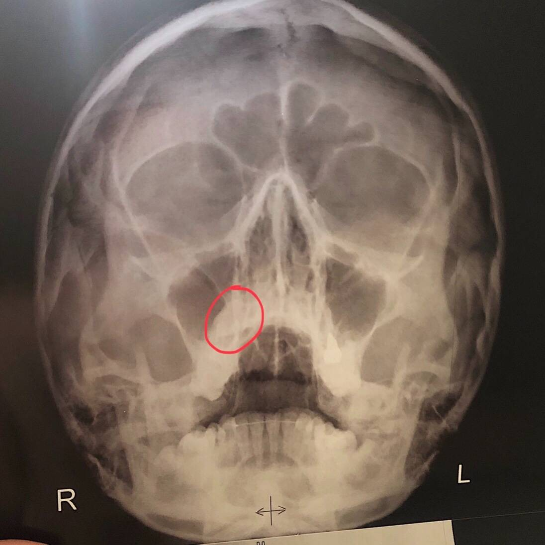 рентген придаточных пазух носа расшифровка