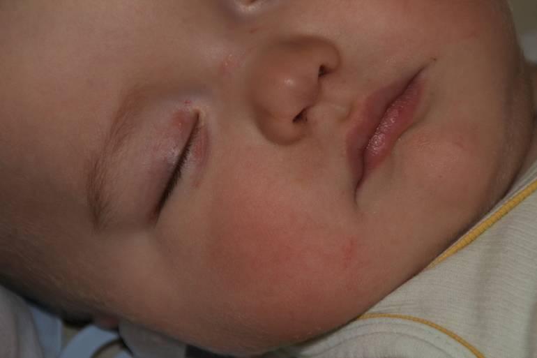 На веке у новорожденного красное пятнышко