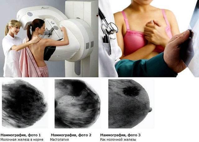 как правильно пройти маммографию
