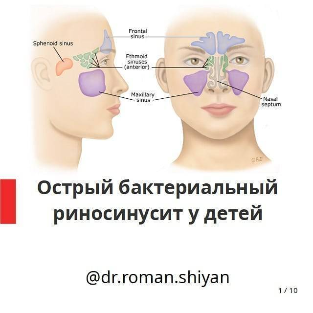 Гнойный синусит острый и хронический: лечение, симптомы, осложнения