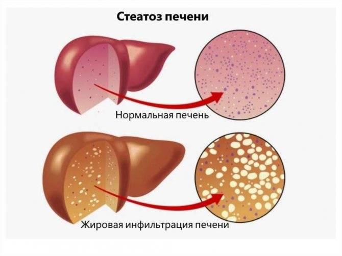 Диффузное изменения поражения печени