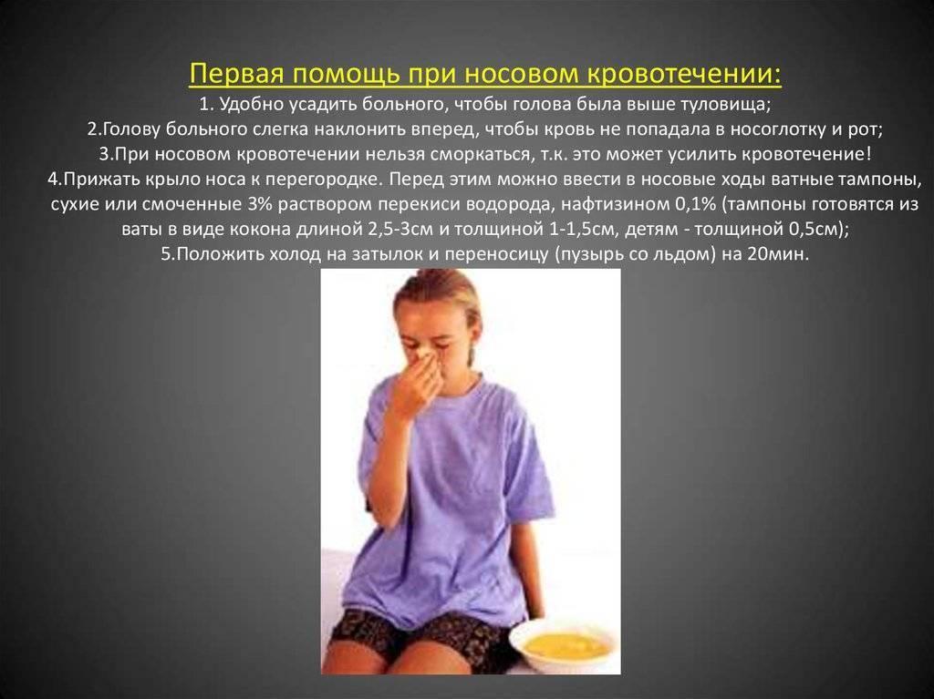 Оказание первой помощи при носовом кровотечении