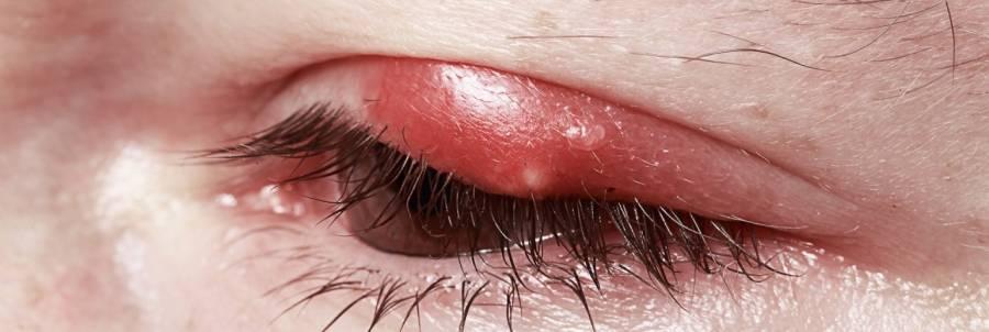 Чирей на глазу: лечение