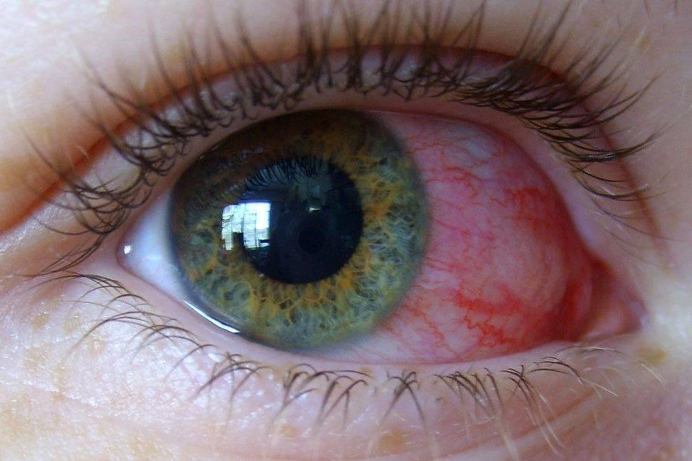 Что делать, если краснеют глаза от линз – 6 простых и действенных советов