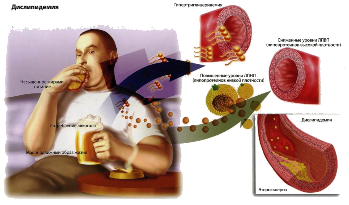 Правда ли, что алкоголь повышает холестерин?
