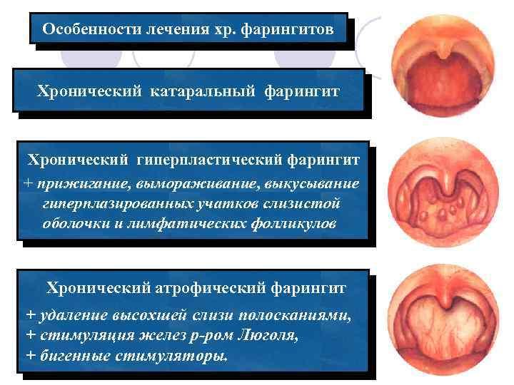 Особенности лечения хронического фарингита