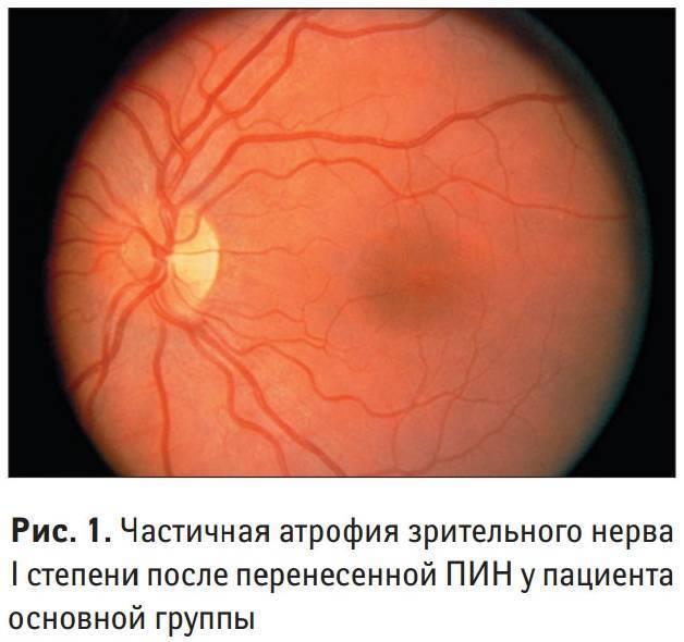 частичная атрофия зрительного нерва симптомы