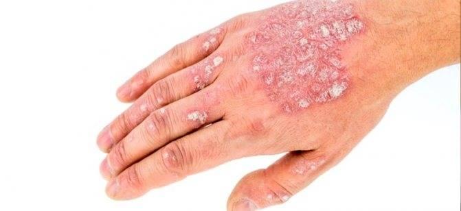 Причины возникновения псориаза: диагностика, причины проявления, симптомы, стадии и признаки развития болезни (120 фото)