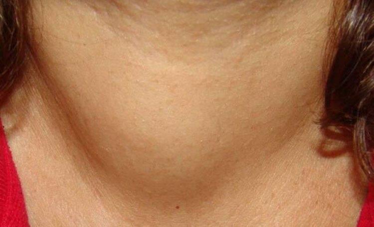 Щитовидная железа после операции