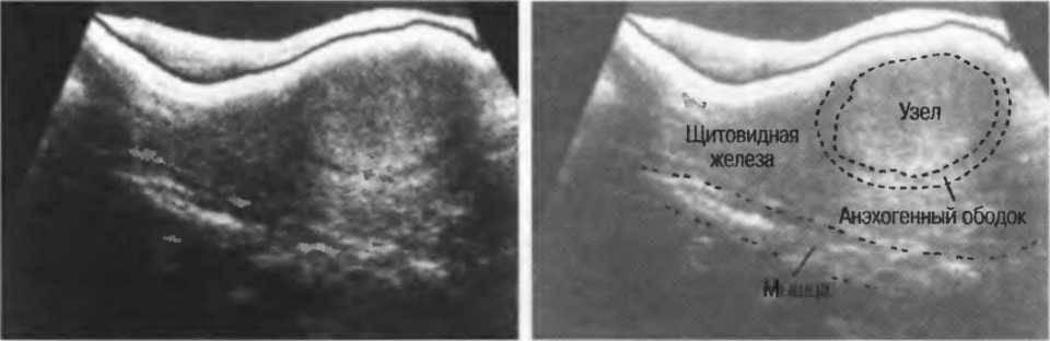 Гипоэхогенный узел щитовидной железы: причины, симптомы, диагностика, лечение, профилактика, прогноз