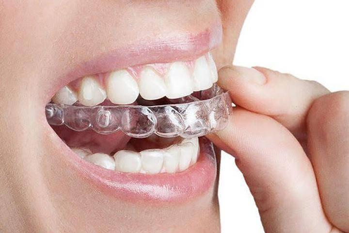 Нужно ли  выравнивать кривые зубы: советы
