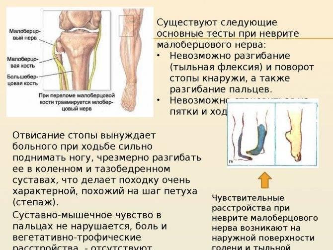Защемление малоберцового нерва симптомы и лечение