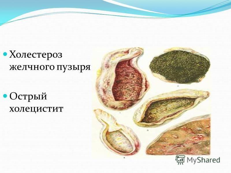 Что такое холестероз стенок желчного пузыря