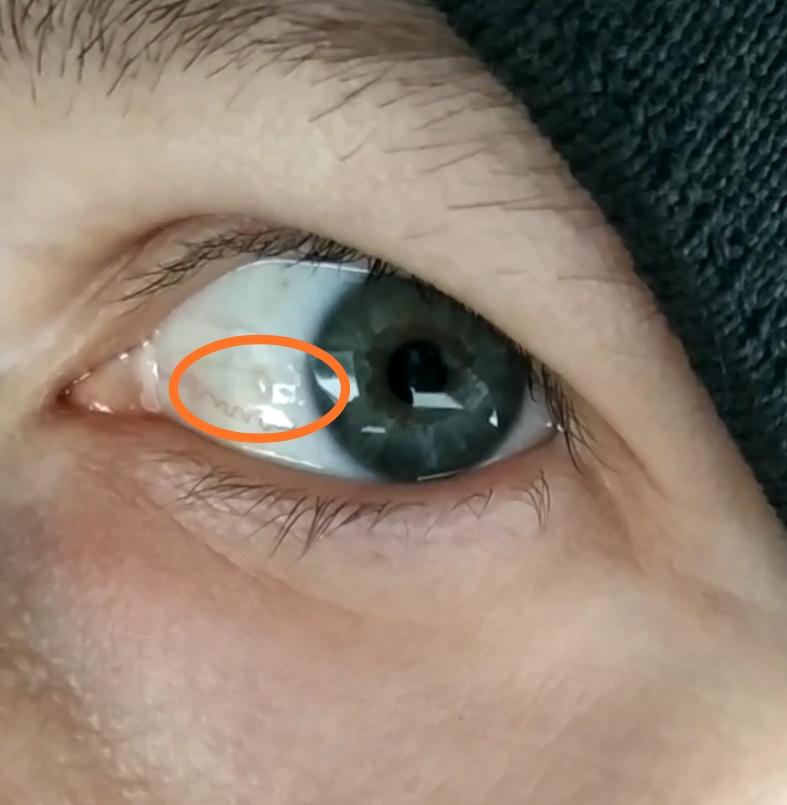 Пузырь на глазном яблоке:  вопросы по офтальмологии