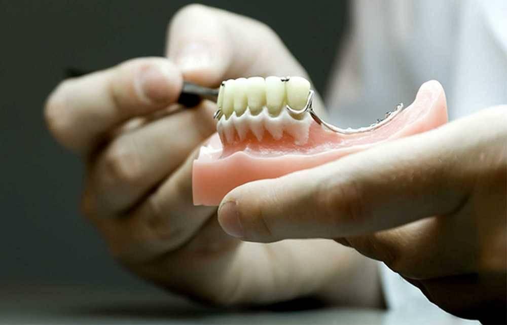 Сравнение съемных зубных протезов