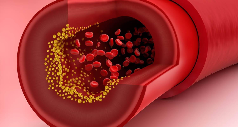 Обзор лучших биологически активных добавок, снижающих холестерин