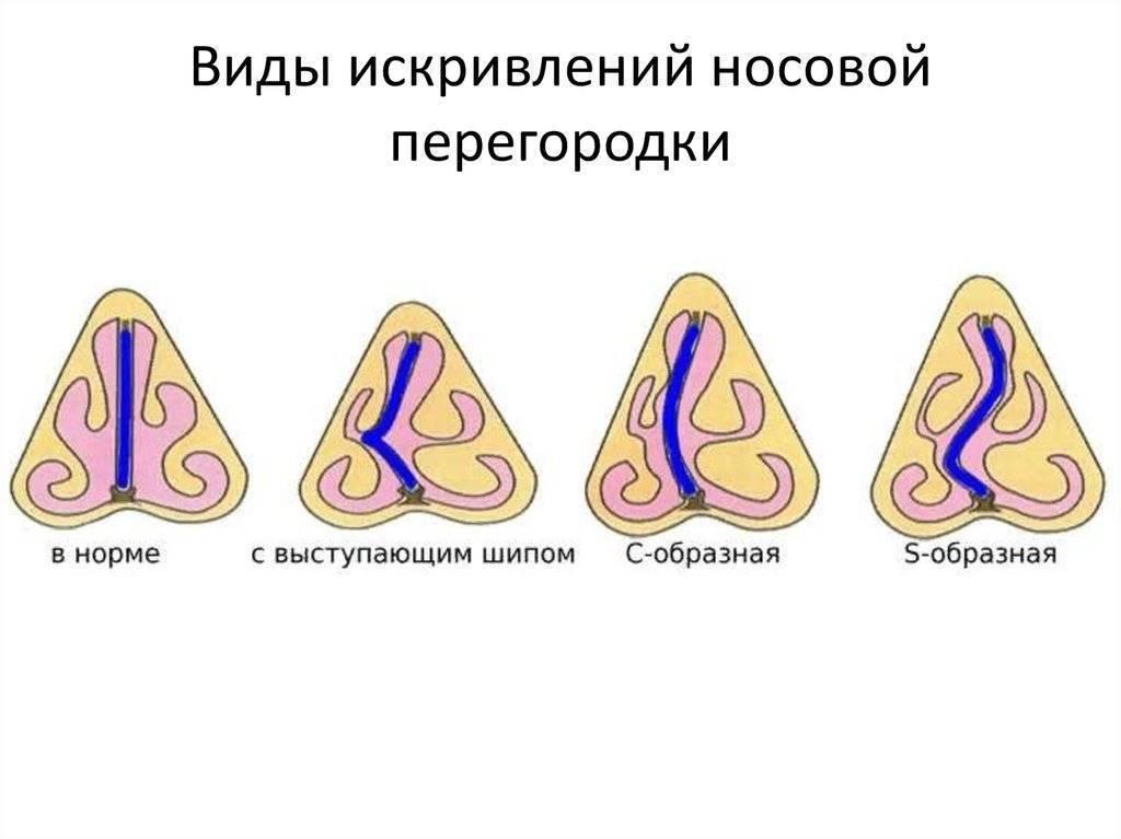 Искривление перегородки носа: причины, последствия, операция
