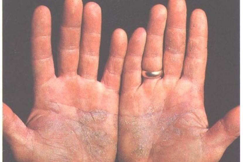 Лечение ладонно-подошвенного псориаза