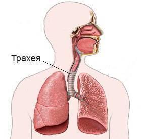 трахеидный кашель