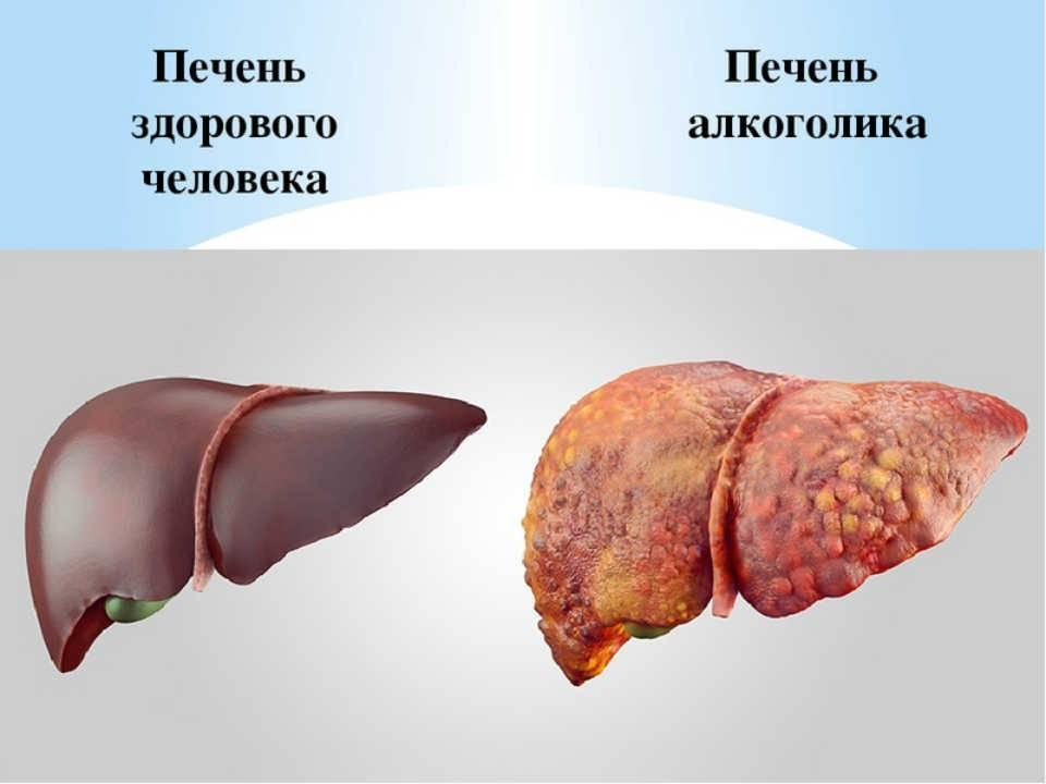 Как влияет алкоголь на печень человека. как алкоголь влияет на печень? адаптивная алкогольная гепатомегалия