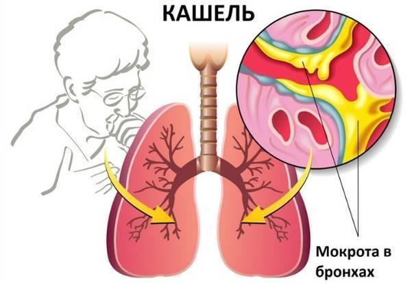 Лечение желудочного кашля у взрослых