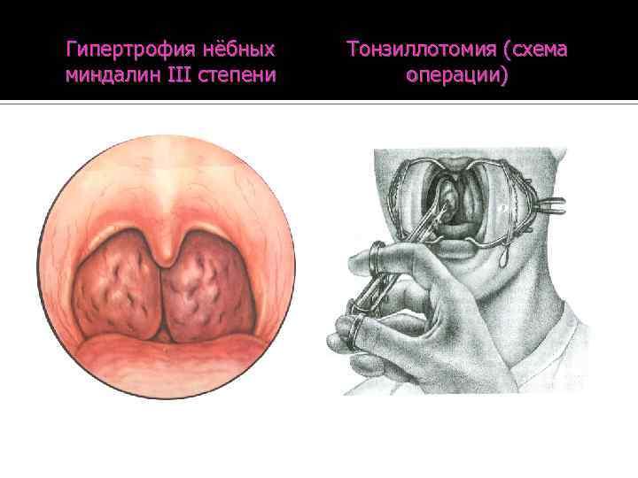 Гипертрофия нёбных миндалин: заболевание или норма?