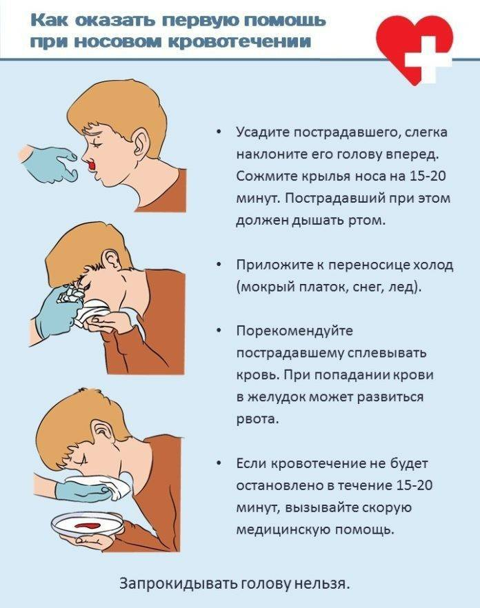 оказание неотложной помощи при носовом кровотечении