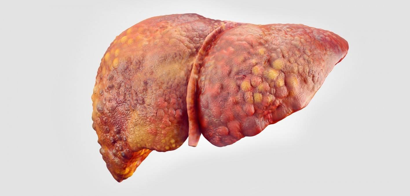 что такое хронический гепатит с