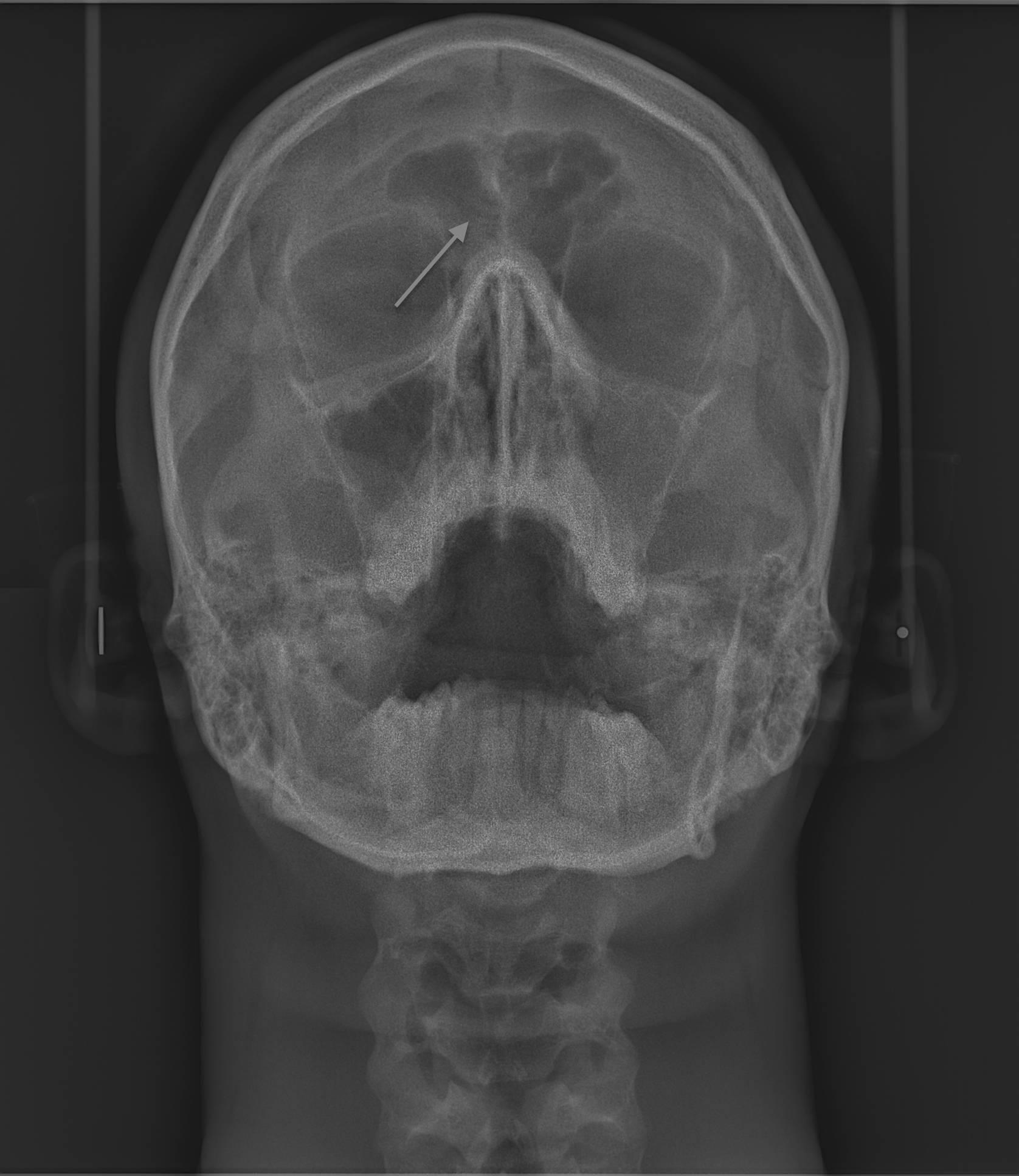 Гипоплазия левой лобной пазухи что это