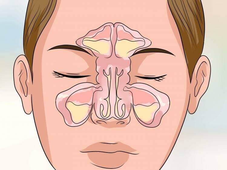 Особенности лечения верхнечелюстного синусита