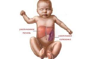 Заболевания печени у детей