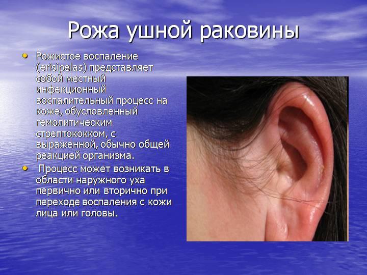 воспаление ушной раковины лечение