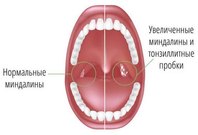 заразна ли фолликулярная ангина