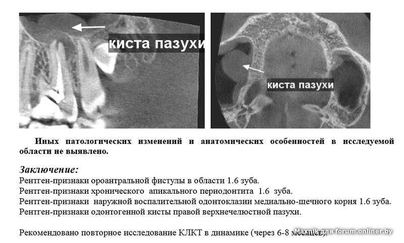 киста верхнечелюстной пазухи лечение