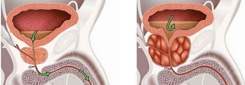 Геморрой и простата связь