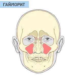 Причины и лечение заложенности носа с головной болью