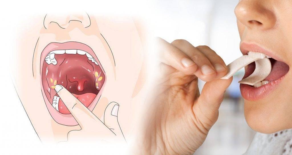 Тонзилитные пробки: как выглядят? причины и лечение