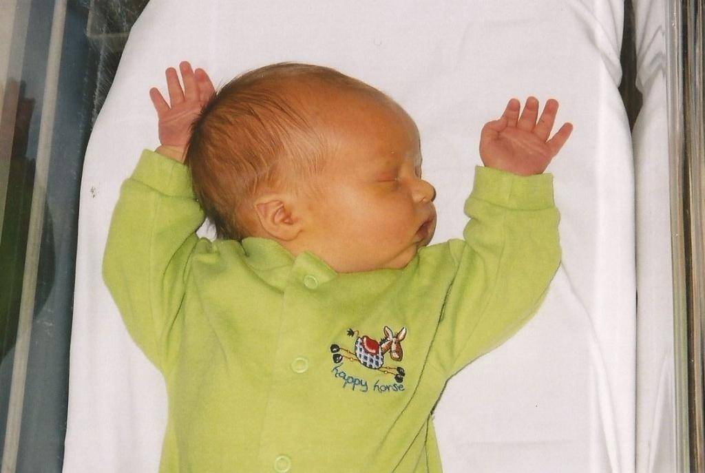 Что такое желтуха новорожденных