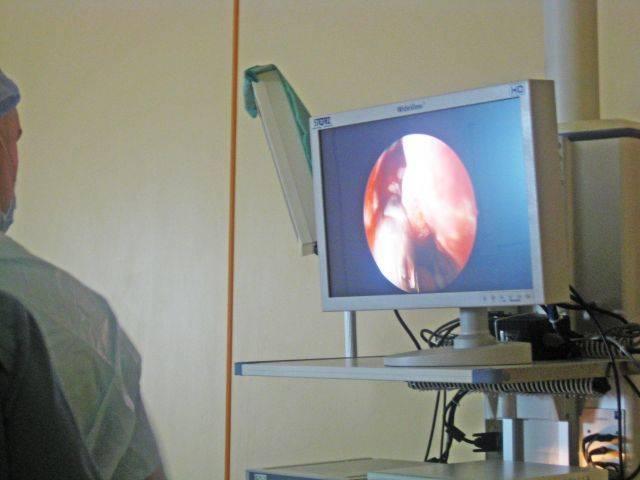 Ларингит: причины, симптомы, диагностика и лечение