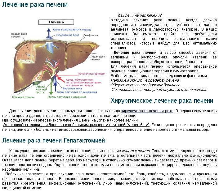 Рак печени: первые признаки, диагностика и лечение