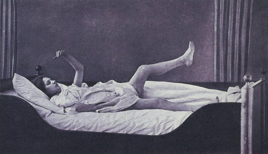 Кататоническая шизофрения википедия