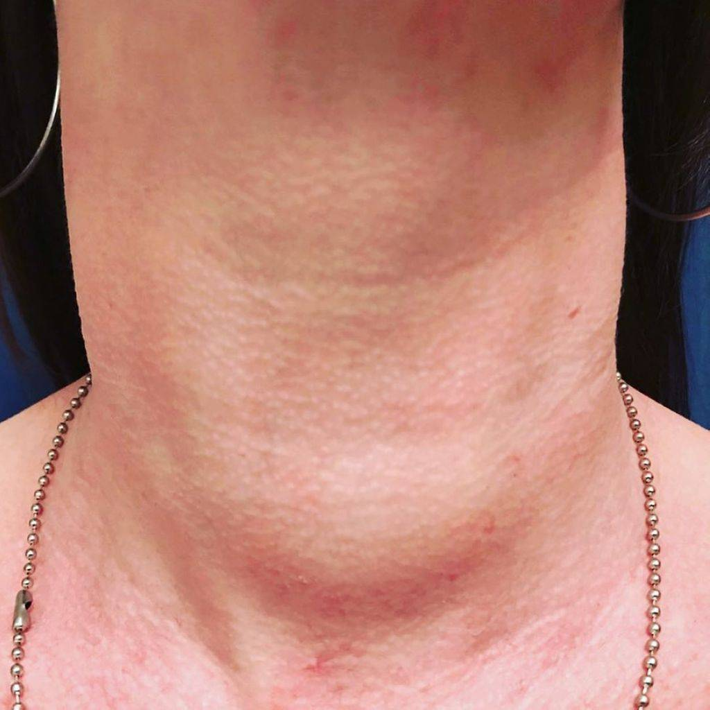 опухоли щитовидной железы причины