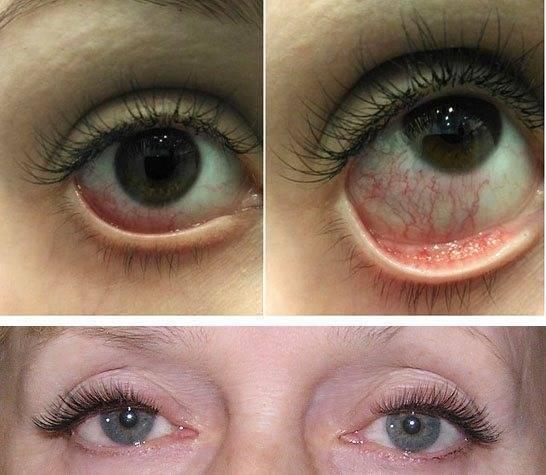 Как избежать красных глаз после бани?