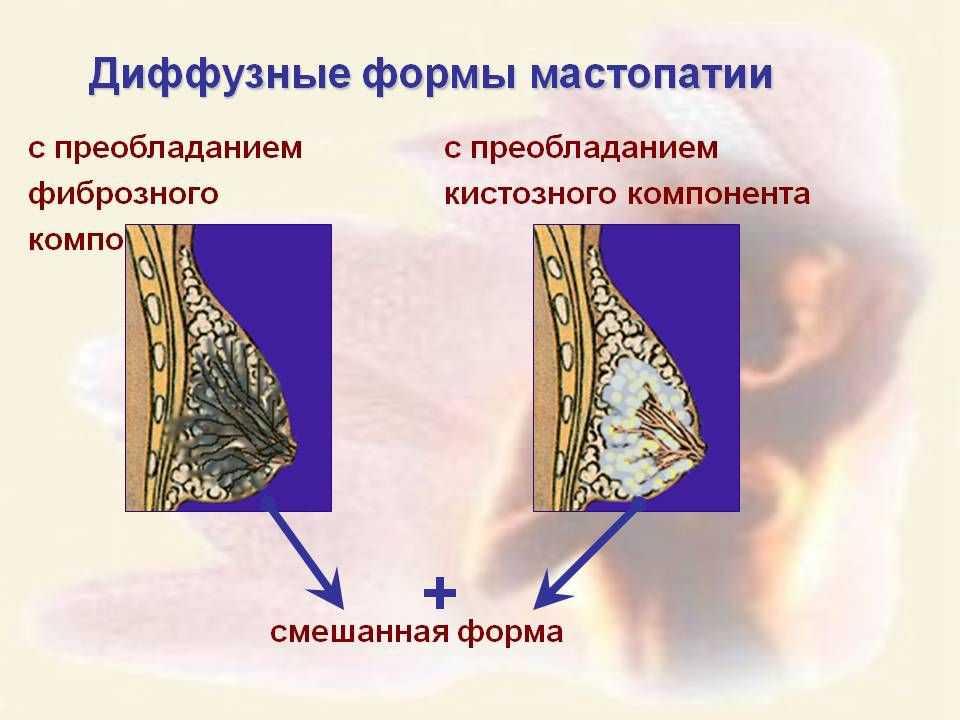диффузная фиброзно кистозная мастопатия молочных желез