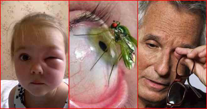 отек глаза после укуса мошки у ребенка