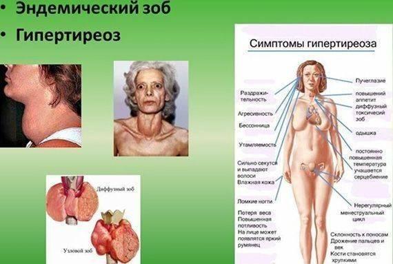 Гипертиреоз щитовидной железы: симптомы, лечение, что это такое, причины, признаки