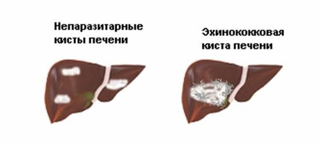 Самые эффективные народные средства при кисте печени