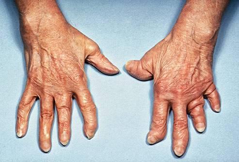 Псориатический артрит - симптомы и проявление. лечение и диета при псориатическом артрите суставов