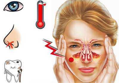 Симптомы гайморита на ранней стадии